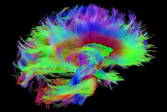 When brains collide - image for article by Greg Alder